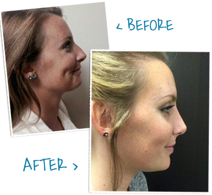 rhinoplasty nj